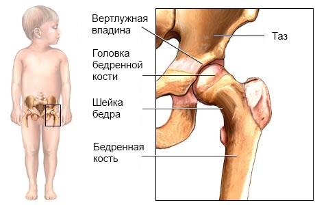 незрелый тазобедренный сустав у грудничка