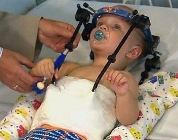 колики и запоры у новорожденных на искусственном вскармливании