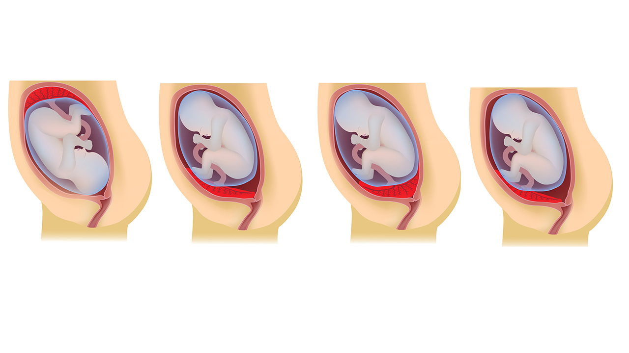 плацента низко расположена 20 недель